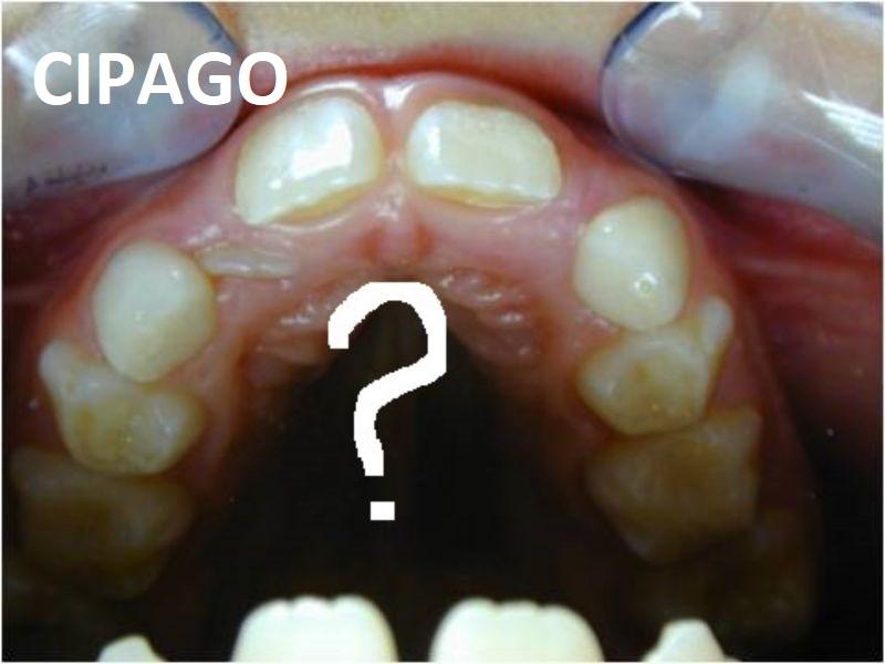 2000 – Tout ce que vous avez toujours voulu savoir sur l'orthodontie sans jamais oser le demander !