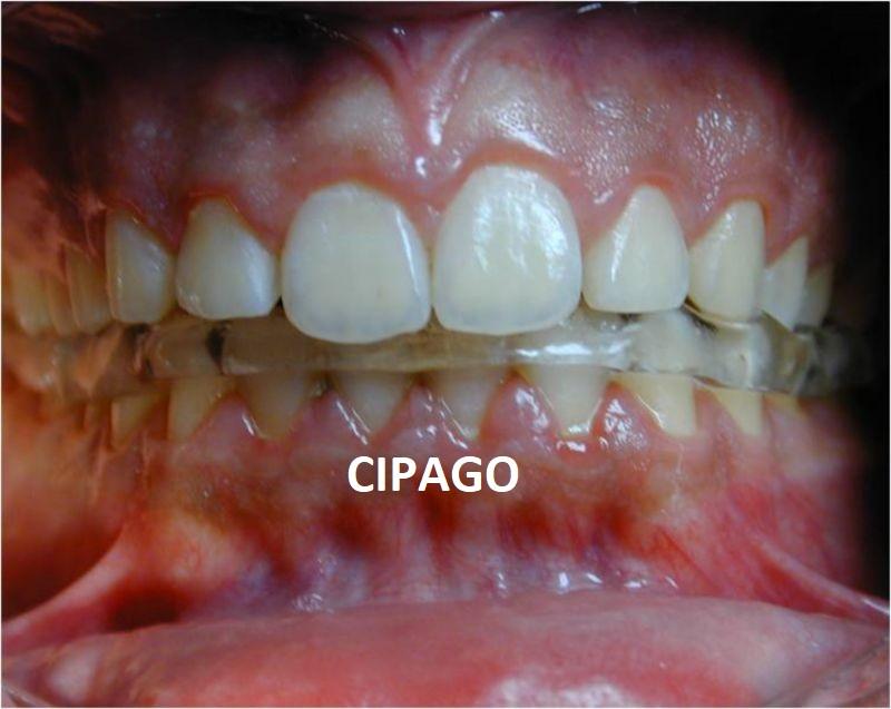 2001 – Orthodontie et Occlusodontie