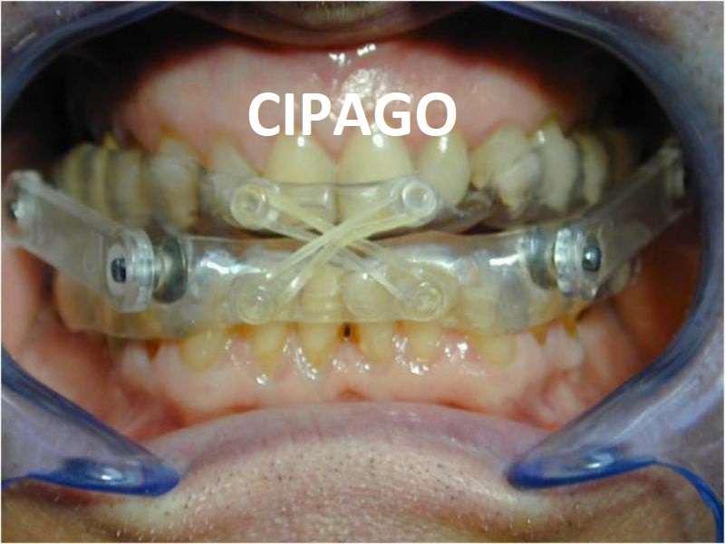 2010 – Les orthèses d'avancée mandibulaire