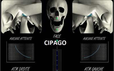 2010 – Traitement des dysfonctionnements temporo-mandibulaires par protocoles synergiques gouttières / chaînes musculaires