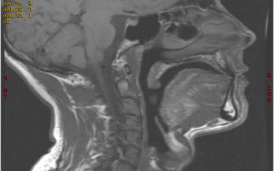 2011 – Les orthèses d'avancée mandibulaire