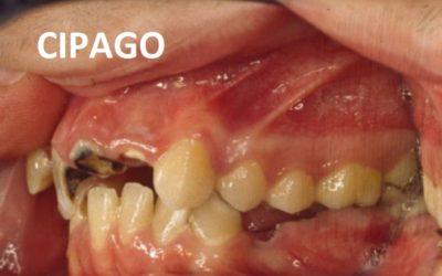 2011 – Rôle du chirurgien-dentiste dans la prévention et le dépistage des cancers buccaux