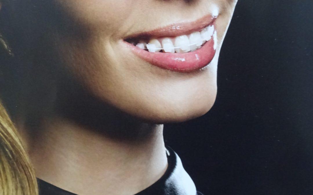 2020 – Le traitement orthodontique 2ème partie : «des indications au dossier du patient»