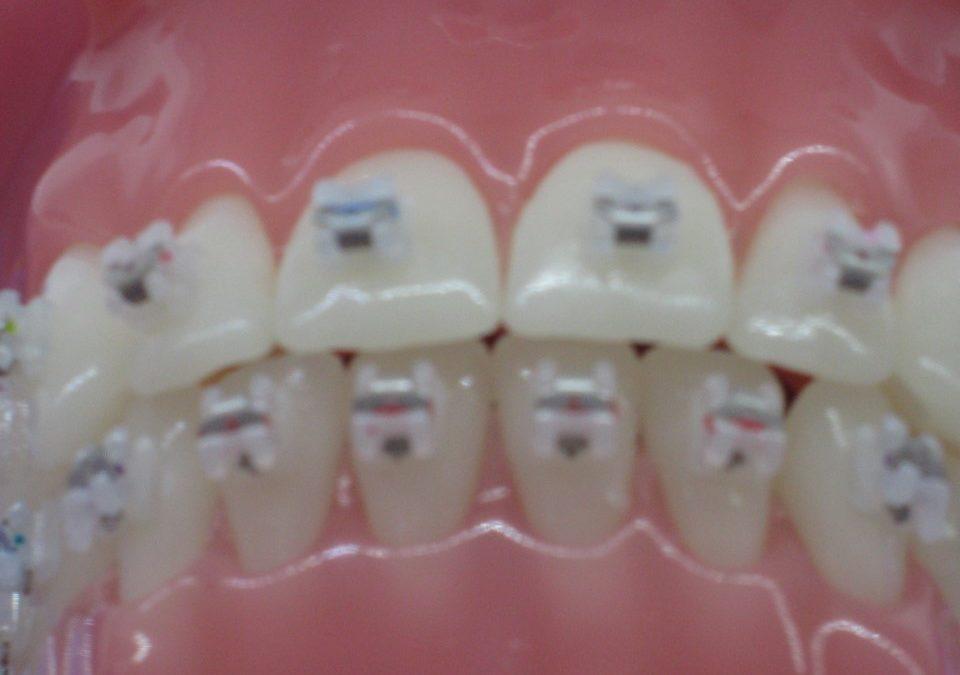 2019 – Que faire en cas d'urgence orthodontique ? Que faire en cas d'irritation ou de blessure dans la bouche ?